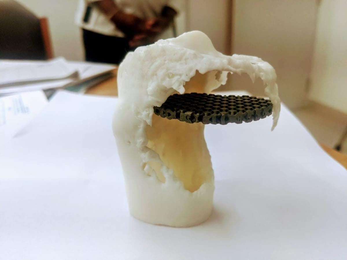 3D printed titanium implant